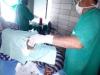 2 asportazione lipoma spalla